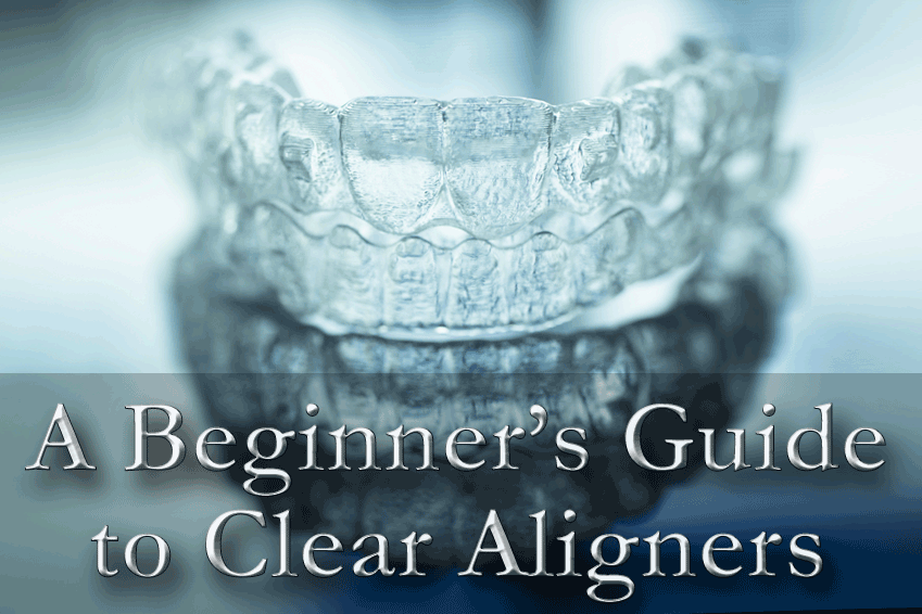 clear-aligners-braces-guide.png