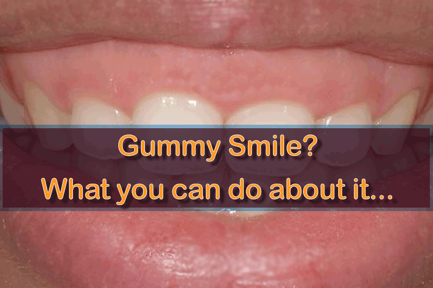 Gummy Smile Treatment