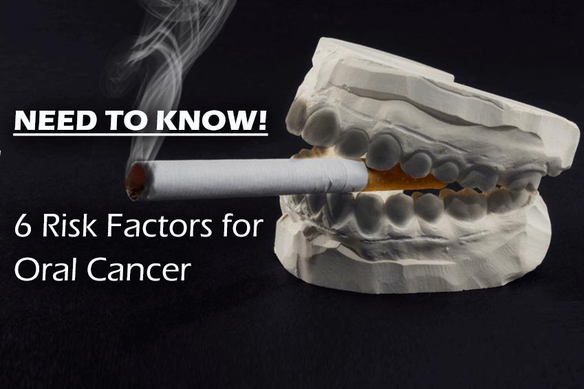 Top Oral Cancer Risks