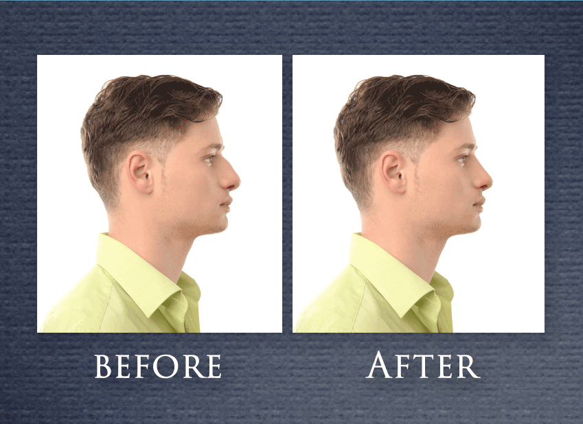 Rhinoplasty Nose Job FAQ